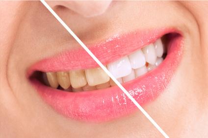 Wybielanie zębów Dąbrowa Górnicza