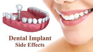 How Long Dental Implant Last and What are the Side Effects of Dental Implants?
