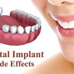 side effects of dental implants