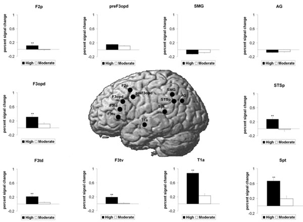 The Neural Processing of Second Language Comprehension