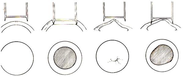 Penetrating Keratoplasty for Keratoconus