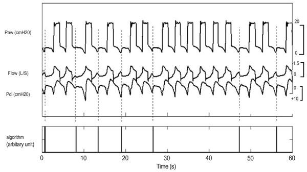 Monitoring Patient/Ventilator Interactions: Manufacturer's