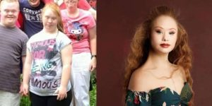 Girl with Down syndrome, loses over 40 pounds and gets into modelling.