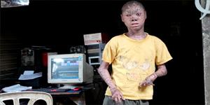Ari Wibowo, Bocah 16 Tahun Asal Pondok Aren Tangsel (Dok. Liputan 6)