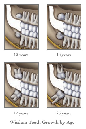 Face Shape Before And After Wisdom Teeth Removal : shape, before, after, wisdom, teeth, removal, After, Wisdom, Teeth, Removal, TeethWalls