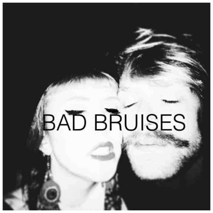 BERLIN LOVES YOU Bad Bruises
