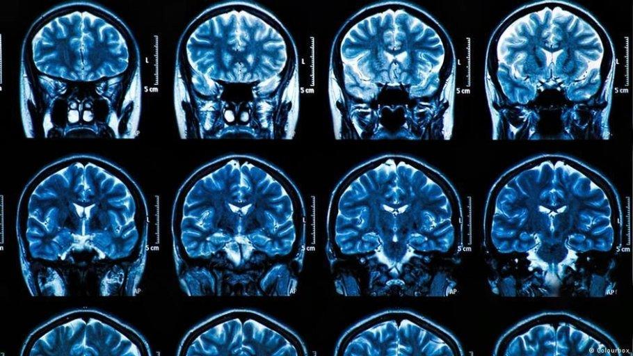 Cérebro Alzheimer