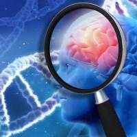 Pesquisa brasileira permite identificar Alzheimer antes dos sintomas