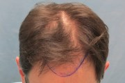 2b position of hairline top view