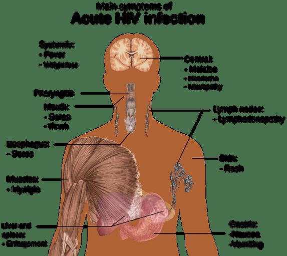 Paciente de londres y berlin curado de sida vih cura