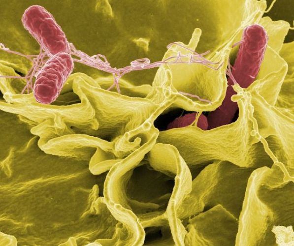 what is listeriosis listeria infection bacteria