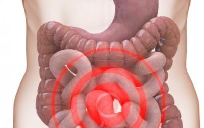 القولون العصبي واعراضه – اعراض القولون