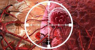 İşlenmiş Gıdaların Kanserle İlişkisi Var Mıdır?