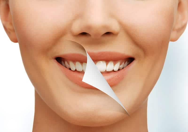 Teeth Whitening services in Los Angeles