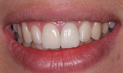 After Dental veneers (Emax)