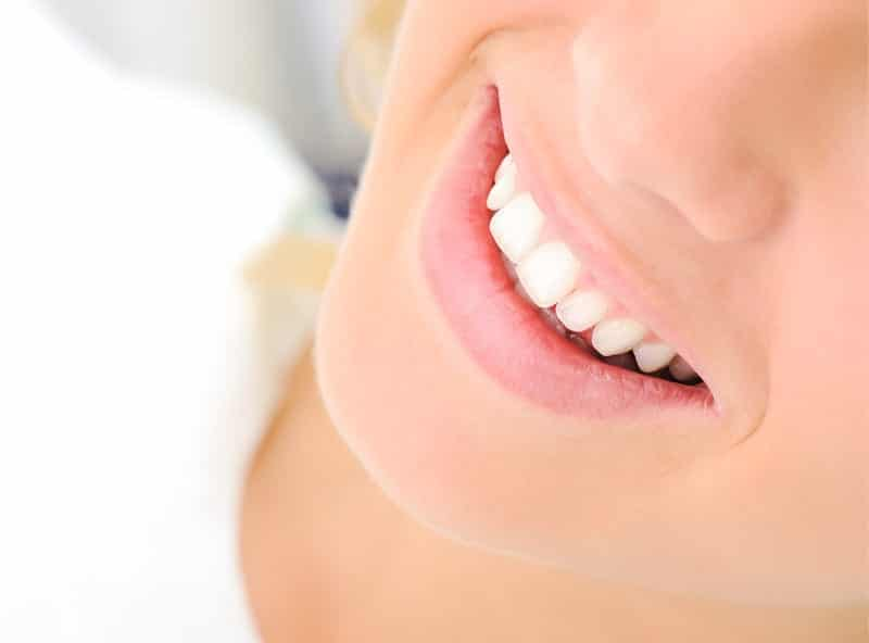 Things You Should Know Before Teeth Whitening Los Angeles dentists