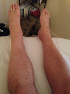 T.C. LEFT ANKLE AND FOOT EDEMA BEFORE COMPRESSION