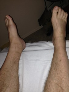 T.C. LEFT FOOT/ANKLE AFTER COMPRESSION STOCKING AND MLD