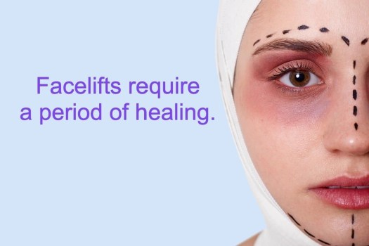 facelift after effects