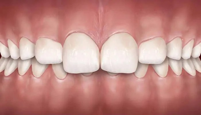 Can I get Veneers With An Overbite? | Houston Dentist Dr ...