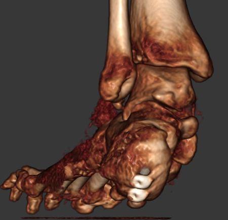 Yohan Foot 1
