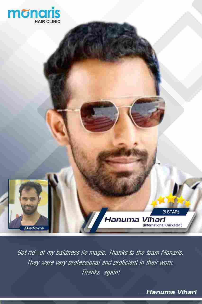 Hanuma Vihari -Another young Cricket player trusted Monaris Hair clinic