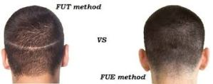 FUT Hair Transplant Cost, Why you Should NEVER Do A FUT Hair Transplant, Dr.Arihant Surana