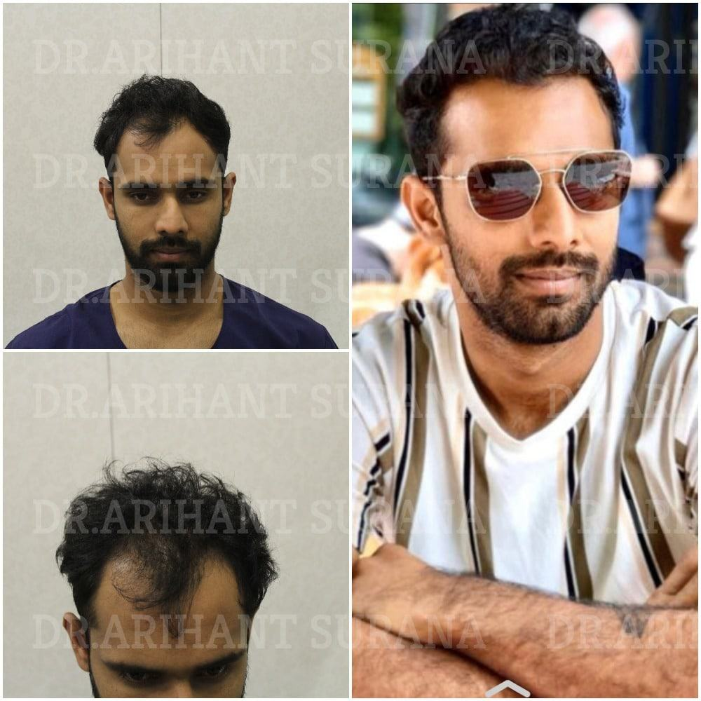 Celebrity Hair transplants – Hanuma Vihari hair Transplant Results