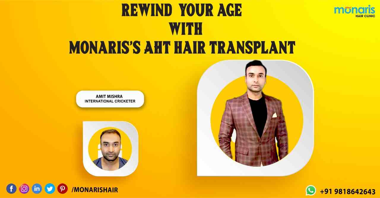 Autologous Hair Transplant – (AHT) at Monaris Hair Clinic
