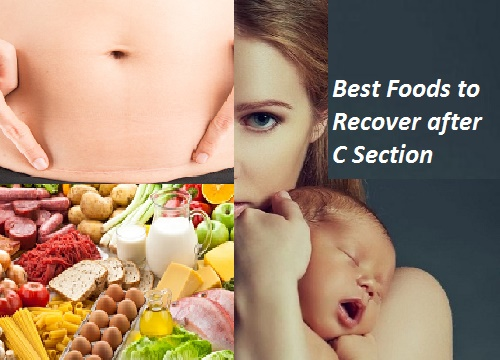 Best Foods to Recover Fast after Cesarean Delivery-Best ...