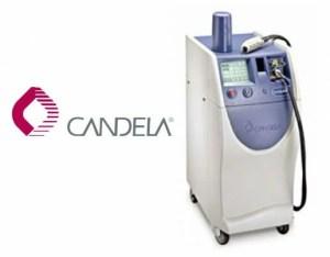 جهاز كانديلا لإزالة الشعر بالليزر
