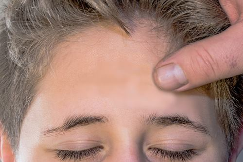 Erotic Head Massage Foreplay