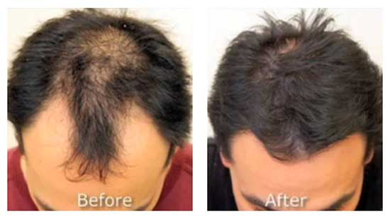 chic-la-vie-neograft-hair-restoration-las-vegas