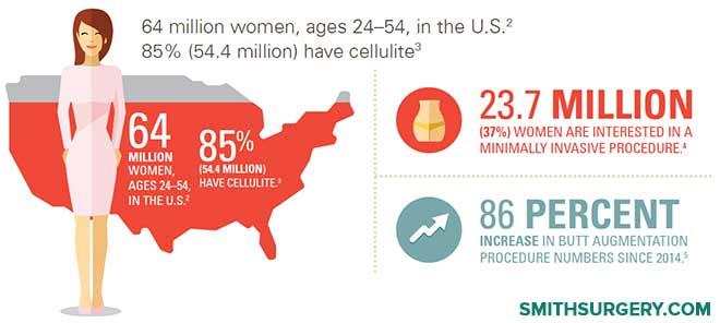 cellfina-cellulite-treatment-las-vegas