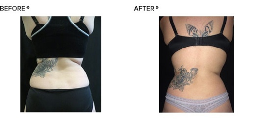coolsculpting2BA