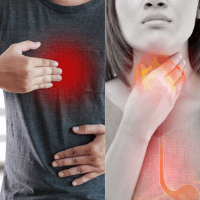 Heartburn Vs Acid Reflux and Other Stories Your Doctor Doesn't Tell You.