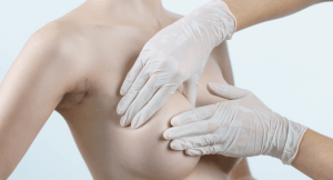 Read more about the article What You Need To Know About Scars From Breast Implants.