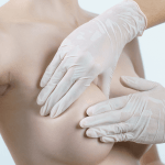 What You Need To Know About Scars From Breast Implants.