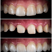 Read more about the article How To Deal With Temporary Crowns Pain.