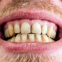 Read more about the article What To Expect From Your Teeth Cleaning Before And After.