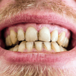 What To Expect From Your Teeth Cleaning Before And After.