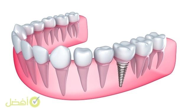 زراعة الاسنان في خمس دقائق أفضل طبيب لزرع الأسنان في الرياض