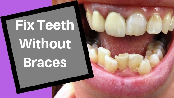 How To Fix Crooked Bottom Teeth Without Braces | TeethMastery