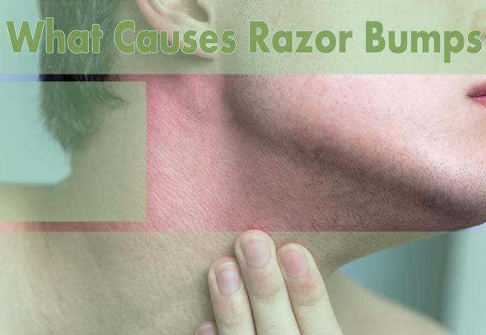 What Causes Razor Bumps