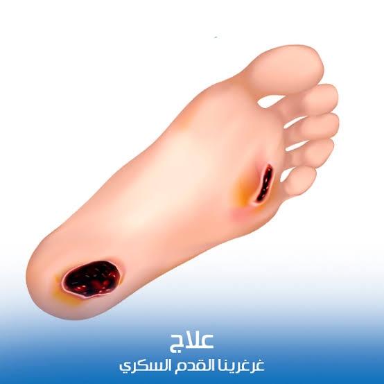 دكتور نبيل ابو بكر عوض