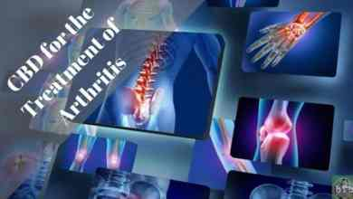 Photo of CBD For The Treatment Of Arthritis