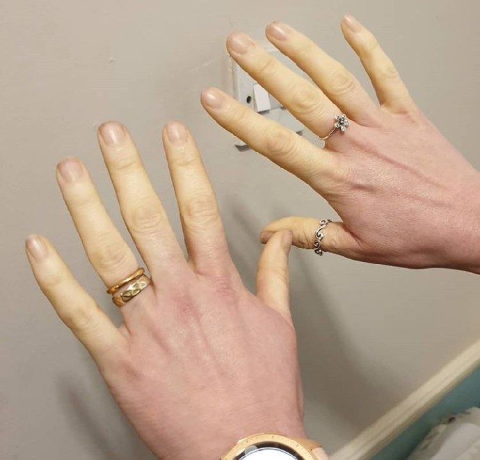 Best Winter Gloves for Raynaud's Syndrome