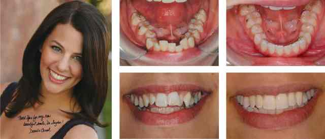 Adult Orthodontics before and after