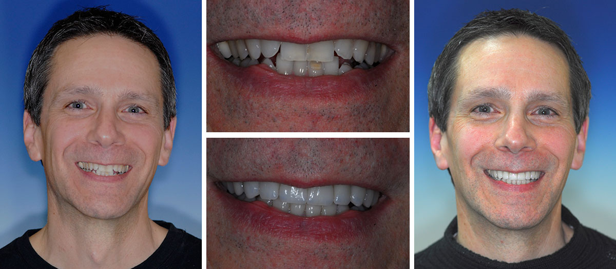 ortho and veneers