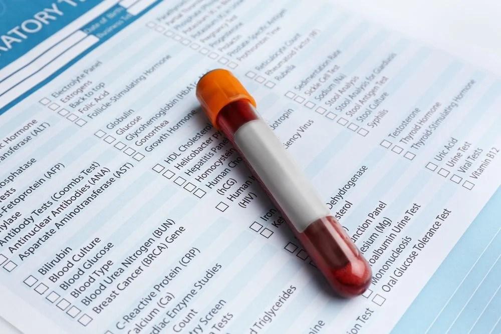 Image result for blood test